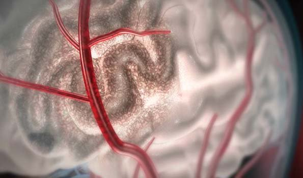 Brain stroke or brain attack occurs when blood flow to brain