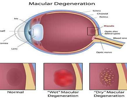 Age-related macular degeneration, a condition ...