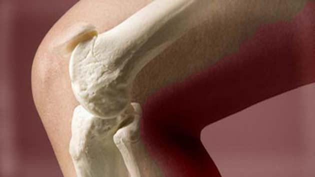 Image result for हड्डी के कमजोर होने पर