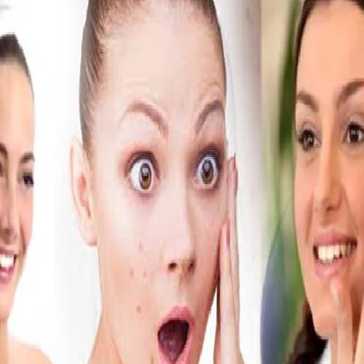 Skin Care : इस खास टिप्स को अपनाएं, कील-मुंहासे की समस्या से निजात पाएं