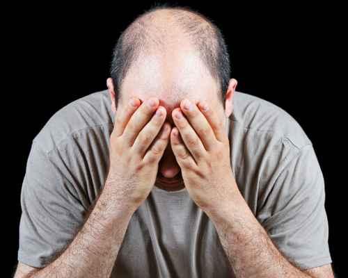 Hair ,  Dandruff ,  Oil ,  Bald Had ,  Coconut Oil ,  Hair Loss,  health,  health tips, ആരോഗ്യം,  ആരോഗ്യ വാര്ത്ത,  എണ്ണ ,  വെളിച്ചെണ്ണ ,  കഷണ്ടി ,  മുടി ,  മുടികൊഴിച്ചിൽ ,  താരൻ ,  തലമുടി
