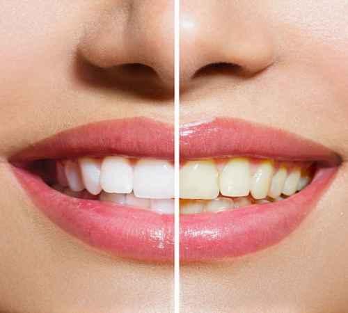 health ,  health tips ,  teeth , body care , പല്ല് , ശരീരസംരക്ഷണം , ആരോഗ്യം ,  ആരോഗ്യവാര്ത്ത